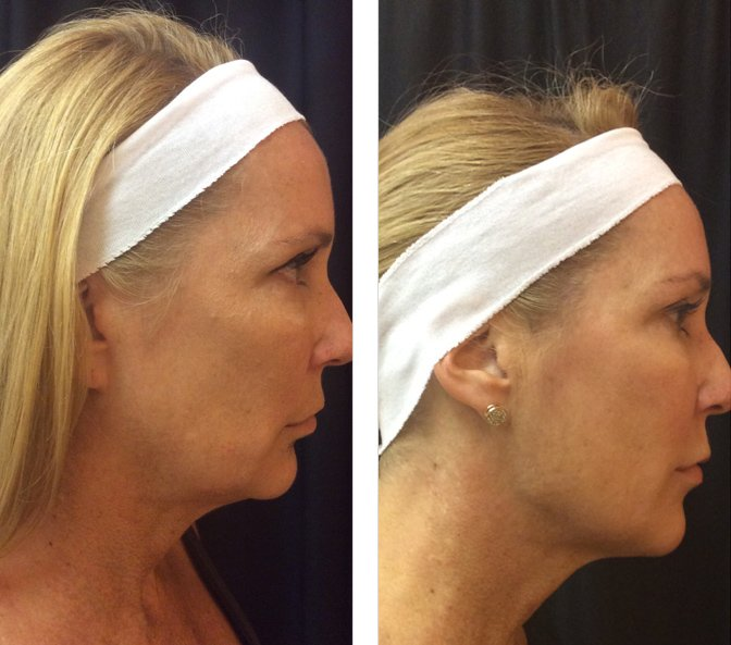 Ultherapy - Neck