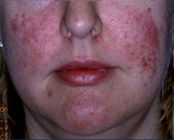 Intense Pulsed Light (IPL) Laser Treatment - Before