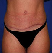 Belt Lipectomy After