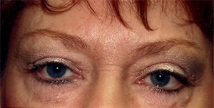 Eye Lift After
