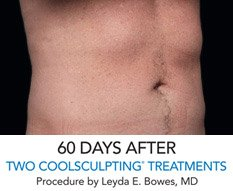 "Coolsculpting ""Love Handles"" Reduction - After"