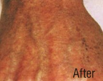 After Tattoo Removal