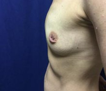 Belt Lipectomy Before