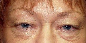 Eye Lift Before