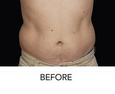 "Coolsculpting ""Love Handles"" Reduction - Before"