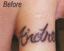 Before Tattoo Removal