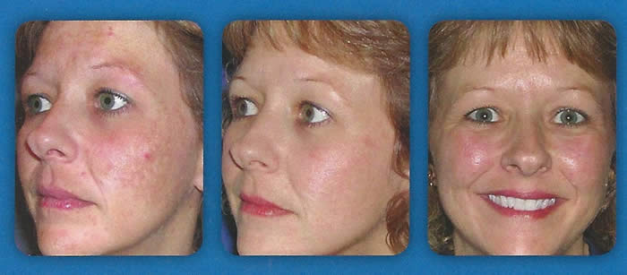 Beautiful Intense Pulsed Light (IPL) Laser Treatment Photo