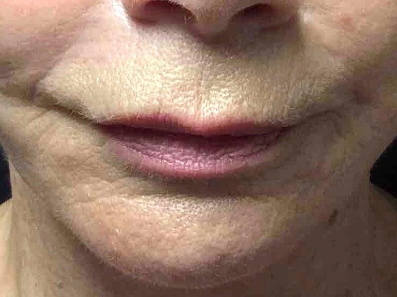 Before Lip Lift