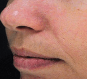 Intense Pulsed Light (IPL) Laser Treatment - After