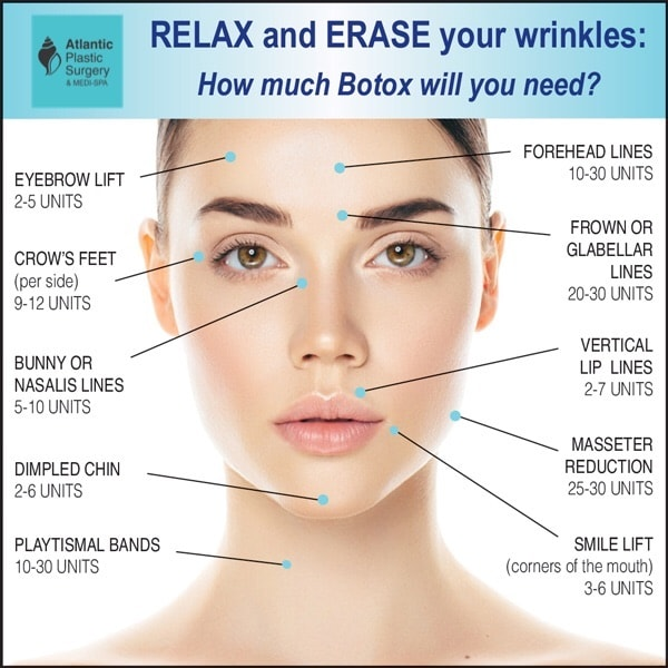 BOTOX Injections to treat facial wrinkles